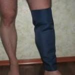 Как избавиться от варикоза: ботфорты с наночастицами избавят от тяжести в ногах