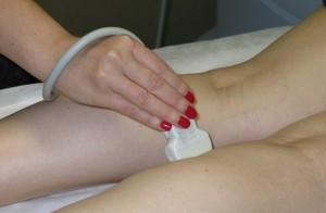 Допплерография сосудов ног