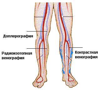 Методы диагностики заболеваний вен