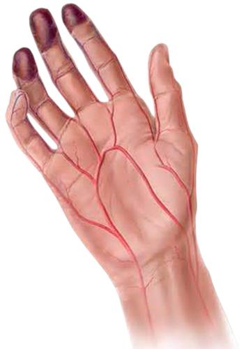 Болезнь может поражает сосуды и ног и рук