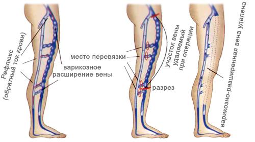Схема перевязки вен при флебэктомии