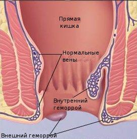 Геморрой в разрезе
