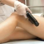 Все способы лечения варикоза: народные методы, неинвазивные, хирургия