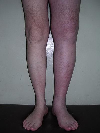 Симптомы тромбоза видны визуально