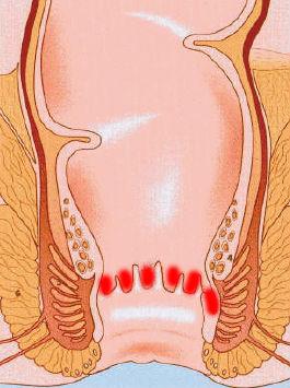 Анатомическое расположение морганиевой крипты