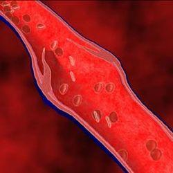 Флебодия - популярный венотоник