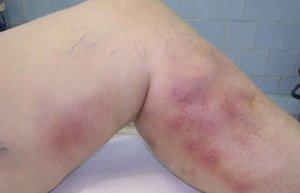 Фото проявлений флебита на ноге