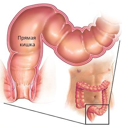 Анатомия прямой кишки