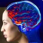 Инсульт — проявление, лечение, профилактика