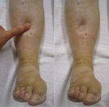 Реакция на надавливание при диагностике причин отека ноги
