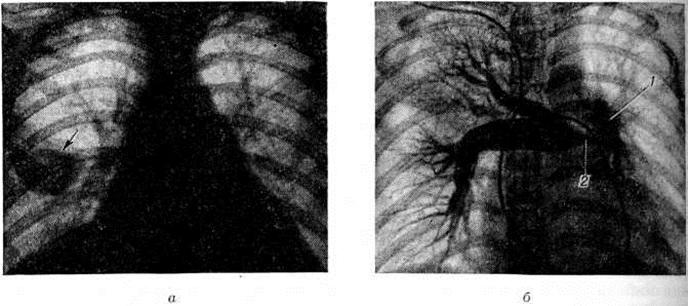 Данные рентгенологического исследования при тромбоэмболии лёгочных артерий