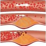 Симптомы и причины атеросклероза сосудов нижних конечностей
