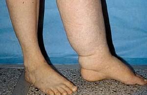 Разница между здоровой ногой и лимфостазом