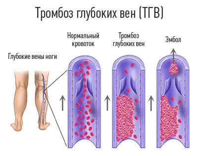 Тромбоз вен голени