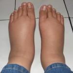 Отеки ног — причины появления, особенности диагностики