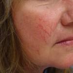 Что такое купероз на лице и как его лечить?
