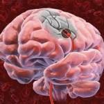 Атеросклероз сосудов головного мозга: причины, симптомы, осложнения, лечение