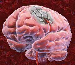 Тромбирование при атеросклерозе сосудов головного мозга