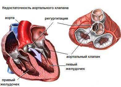 Расположение аортального клапана