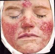 Больная с 4 стадией купероза
