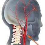 Стеноз кровеносных сосудов: причины, симптомы, группа риска