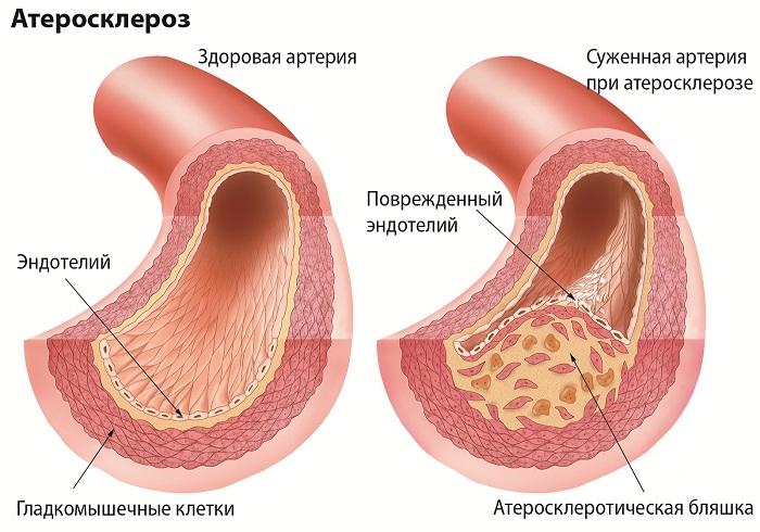Схема возникновения атеросклероза
