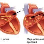 Мерцательная аритмия сердца — симптомы и лечение