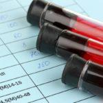 Мочевая кислота в крови — что это такое и почему повышается